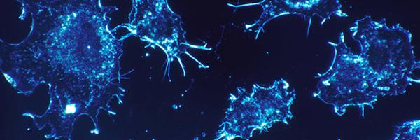 Vodíková voda zpomaluje růst buněk karcinomu v lidském jazyku
